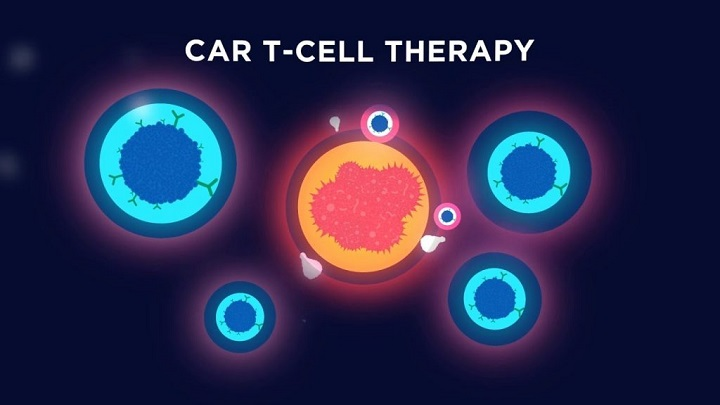 Global CAR-T Cell Therapy Market-7b5612f1
